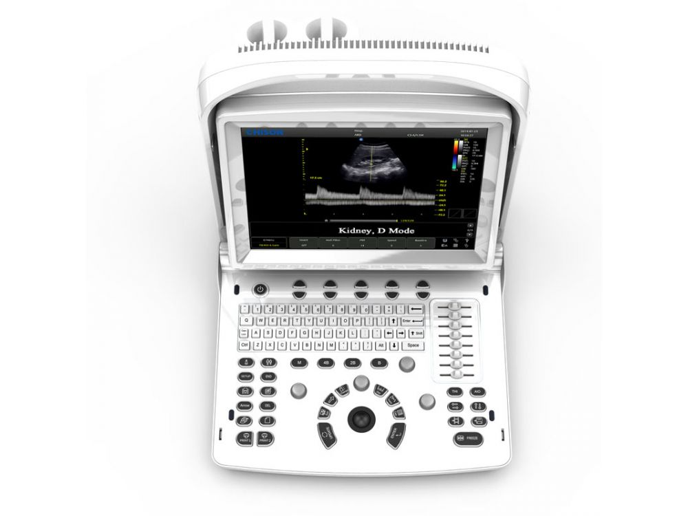 Chison Eco 3 Expert Vet Ultrasound System